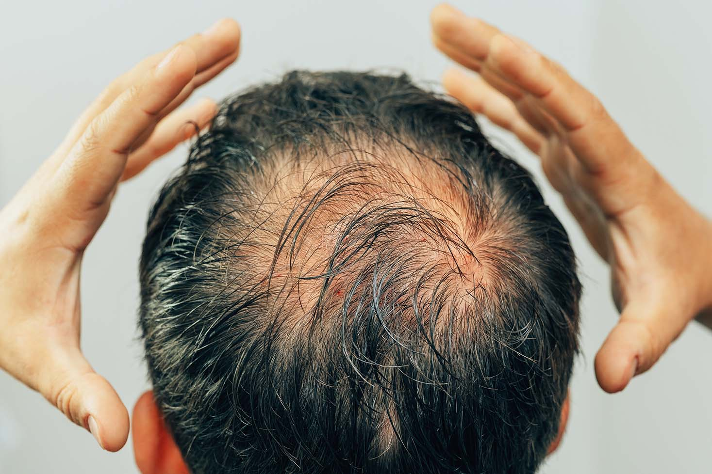When is it Normal to Lose Hair?