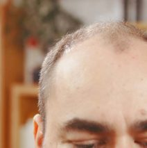 4 Major Causes of Hair Loss