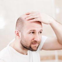 How Does Scalp Micro Pigmentation Help In Hair Loss Treatment?